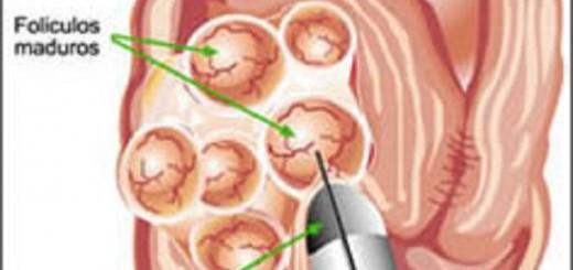controles de conservación óvulos