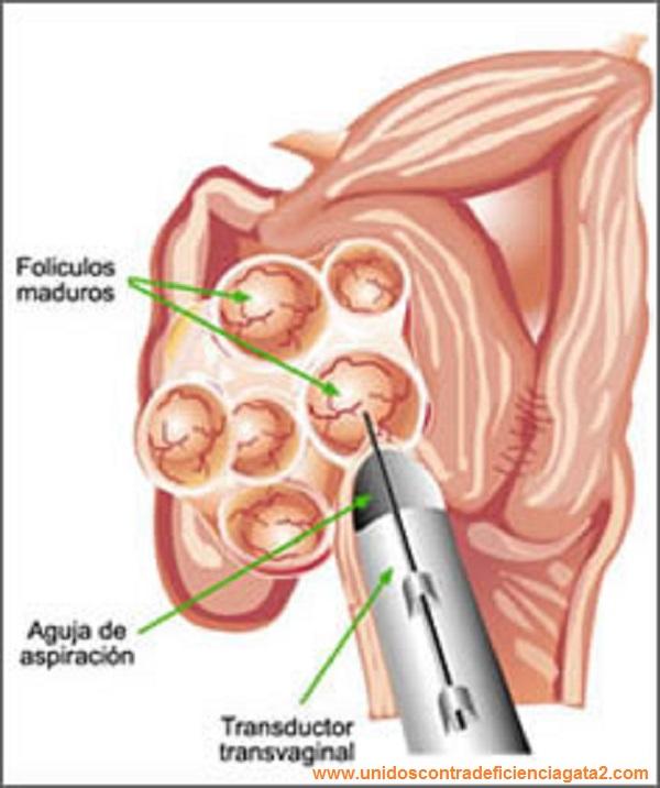 controles estimulación ovárica