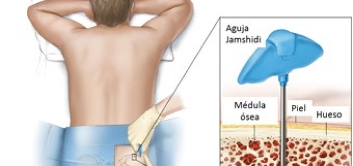 biopsia médula osea